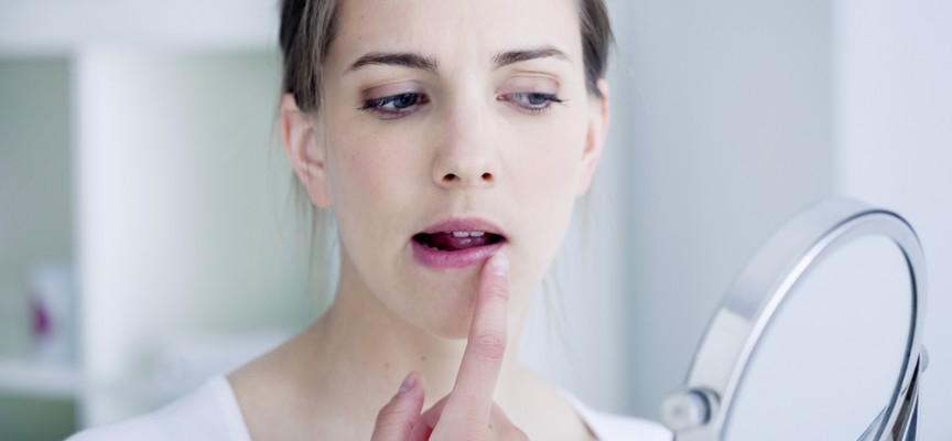 Imagem do post Como evitar surpresas: a recorrência da herpes pode ser controlada?