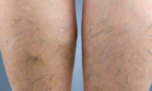 Sente dores nas pernas? Saiba as diferenças entre cansaço e sinais de varizes