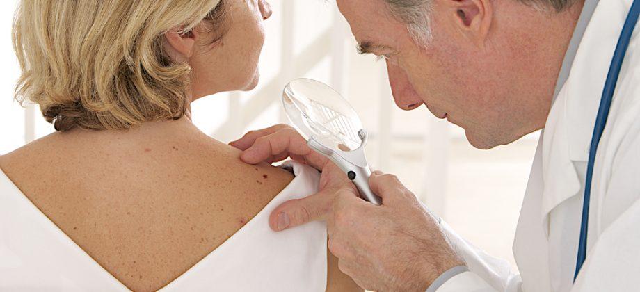 Imagem do post Como identificar indícios de câncer de pele do tipo melanoma?