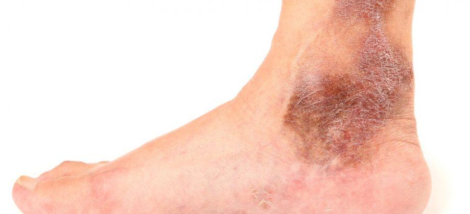 Imagem do post Pele seca e com mudanças de tonalidade: conheça alguns dos sintomas mais graves das varizes