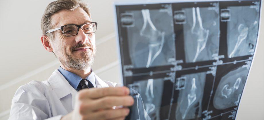 Imagem do post Quais são os ossos mais afetados pela osteoporose?
