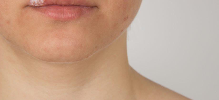 Imagem do post O que causa o herpes labial? É possível diagnosticar o vírus e evitar que as lesões apareçam?