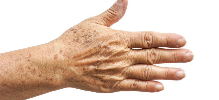 Imagem do post Quais são os tipos mais comuns de manchas na pele?