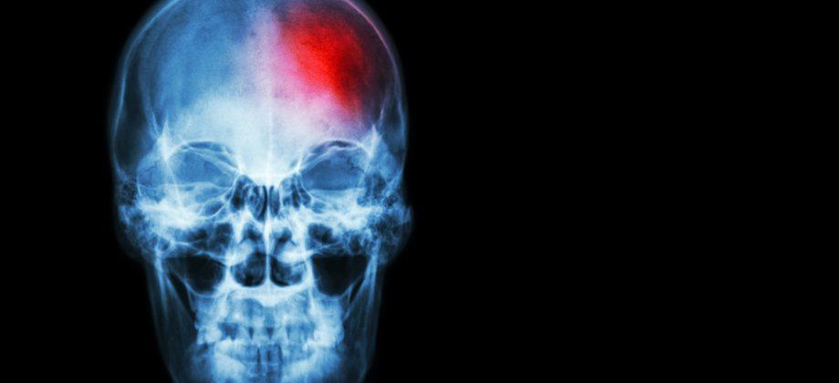 Imagem do post Derrame: entenda o que acontece no cérebro durante esse episódio, que pode ser causado pela hipertensão