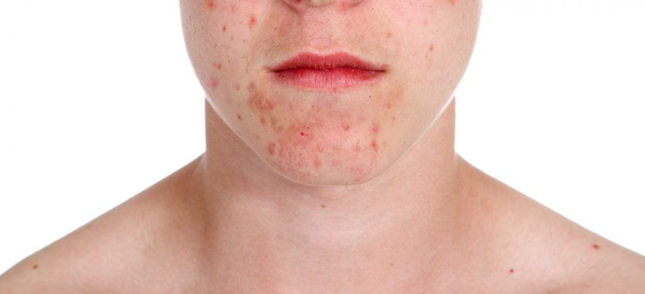 Imagem do post O que acontece em uma pele com acne?