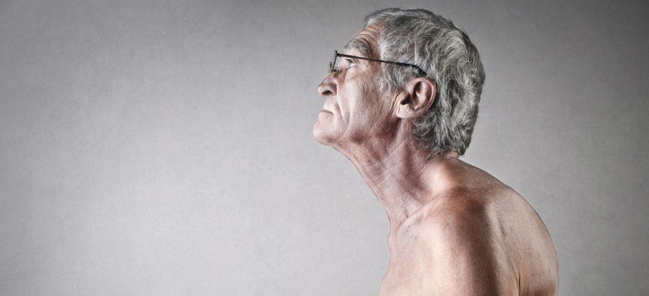 Imagem do post A osteoporose pode gerar deformações na coluna vertebral, a popular corcunda?