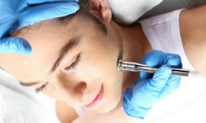 Fez um peeling? A pele fica sensível após o procedimento e precisa de cuidados