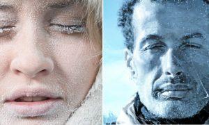 Inverno: o frio pode deixar a pele desidratada e propensa à descamação
