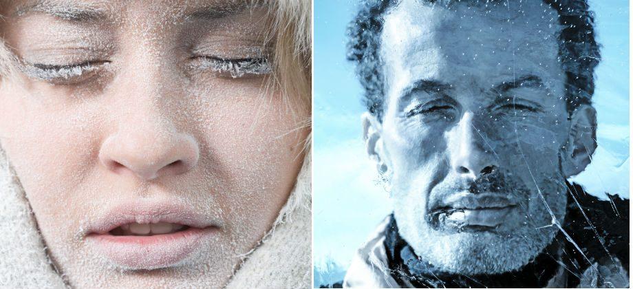 Imagem do post Inverno: o frio pode deixar a pele desidratada e propensa à descamação