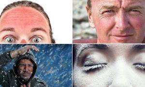 Quais são os principais fatores ambientais que podem causar danos à pele?