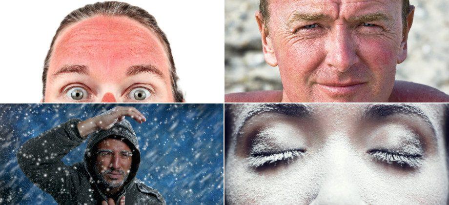 Imagem do post Quais são os principais fatores ambientais que podem causar danos à pele?