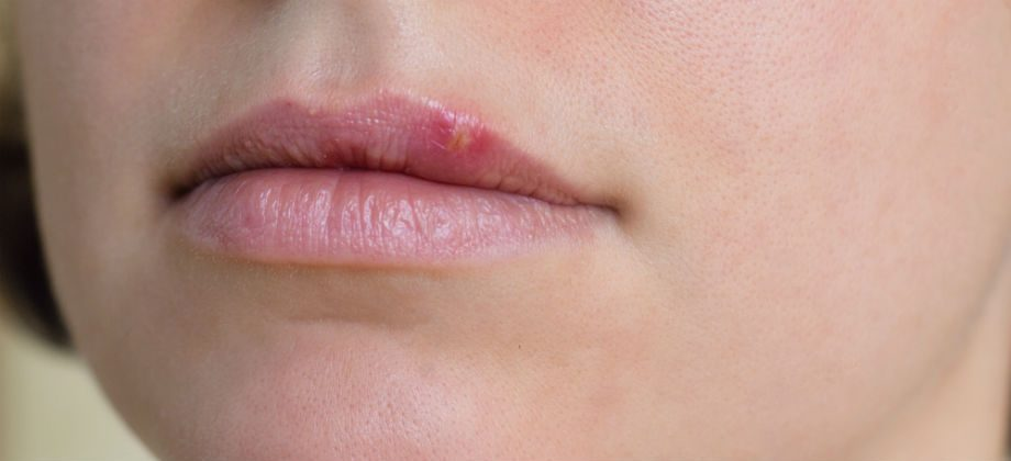 Imagem do post O herpes pode apresentar sintomas antes do aparecimento das feridas?