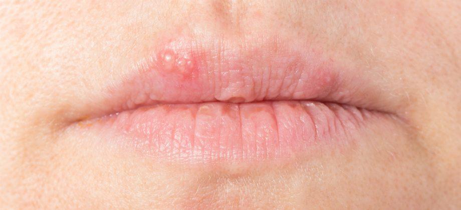Imagem do post Além da lisina, há outras substâncias que ajudam a combater o vírus do herpes?