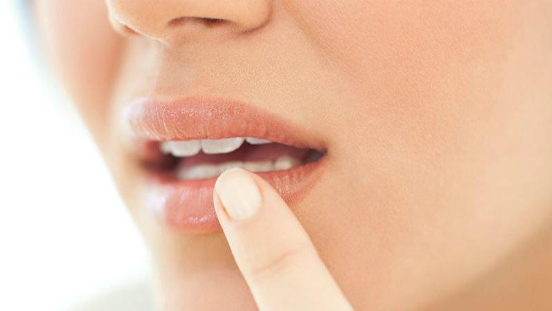 Resultado de imagem para Herpes labial pode querer dizer uma dessas oito coisas sobre sua saúde