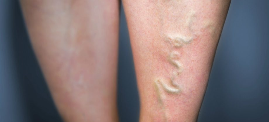 Imagem do post Flebites podem afetar quem sofre de varizes e deixar sequelas