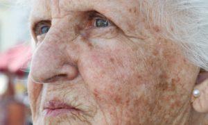 Combate às manchas: quais são os principais ativos clareadores de pele?