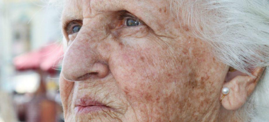 Imagem do post Combate às manchas: quais são os principais ativos clareadores de pele?