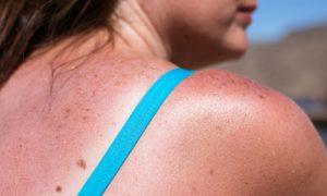 Por que a exposição excessiva ao sol pode reduzir as defesas do organismo?