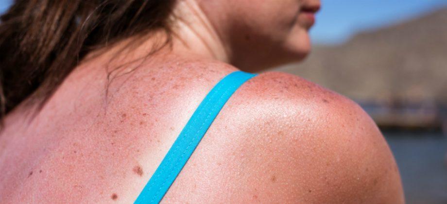 Imagem do post Por que a exposição excessiva ao sol pode reduzir as defesas do organismo?