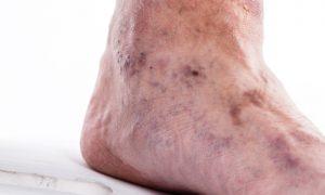 Conheça complicações perigosas que podem ser causadas por coágulos sanguíneos