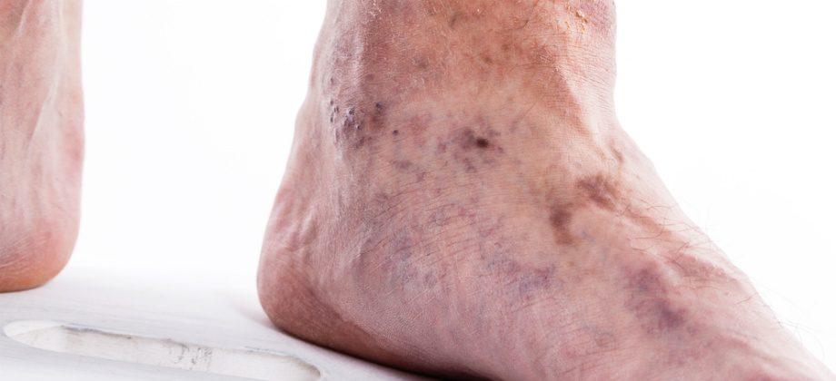 Imagem do post Conheça complicações perigosas que podem ser causadas por coágulos sanguíneos