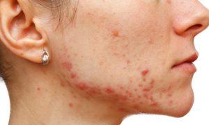 Cuidado com a acne: por que a pele do rosto fica oleosa?