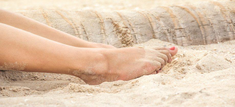 Imagem do post Varizes: quais são os cuidados para tratar a doença no verão?