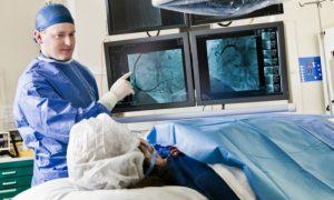 Cateterismo: Saiba como funciona o exame cardíaco