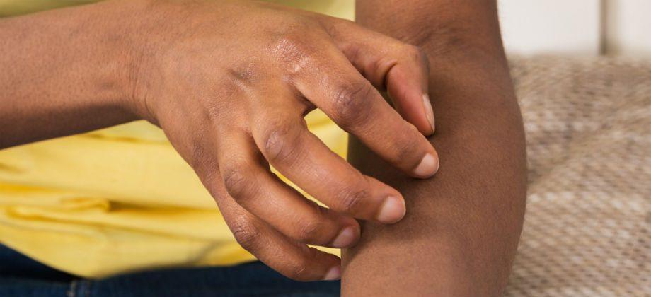 Imagem do post O que é dermatite? Quais são suas principais características?