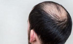 Quais são as principais causas para a queda de cabelo?