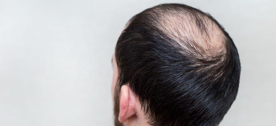 Imagem do post Quais são as principais causas para a queda de cabelo?
