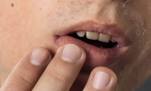 Quais são as possíveis complicações de uma infecção pelo herpes?