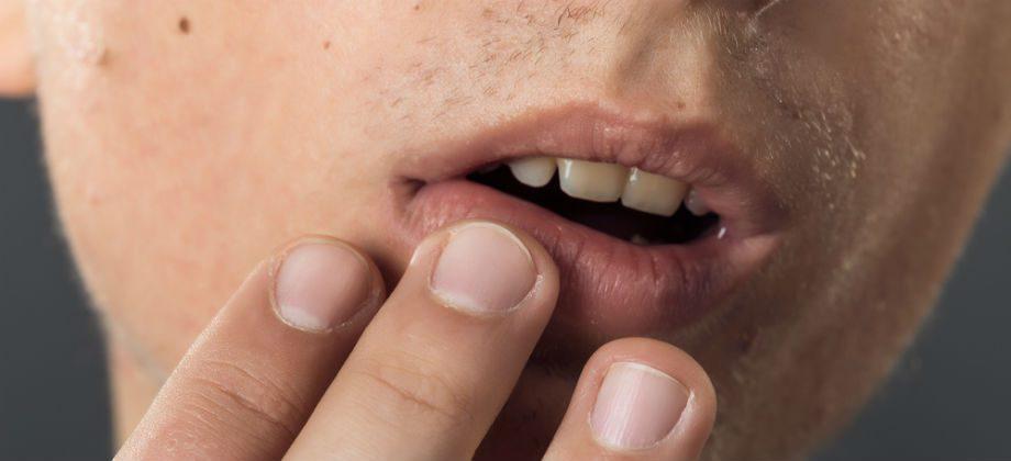 Imagem do post Quais são as possíveis complicações de uma infecção pelo herpes?