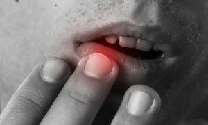 Herpes: dicas para você reduzir riscos de contágio para outras pessoas durante crises