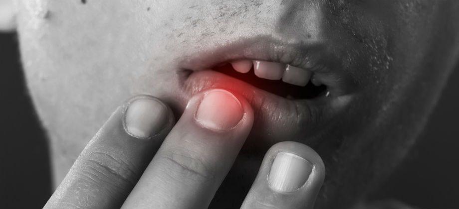 Imagem do post Herpes: dicas para você reduzir riscos de contágio para outras pessoas durante crises