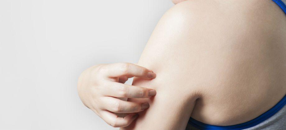Imagem do post Quais são os tipos de dermatite que existem?