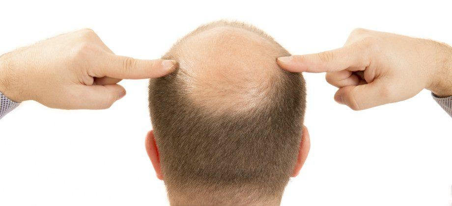 Imagem do post É possível diminuir a queda de cabelo com remédios?