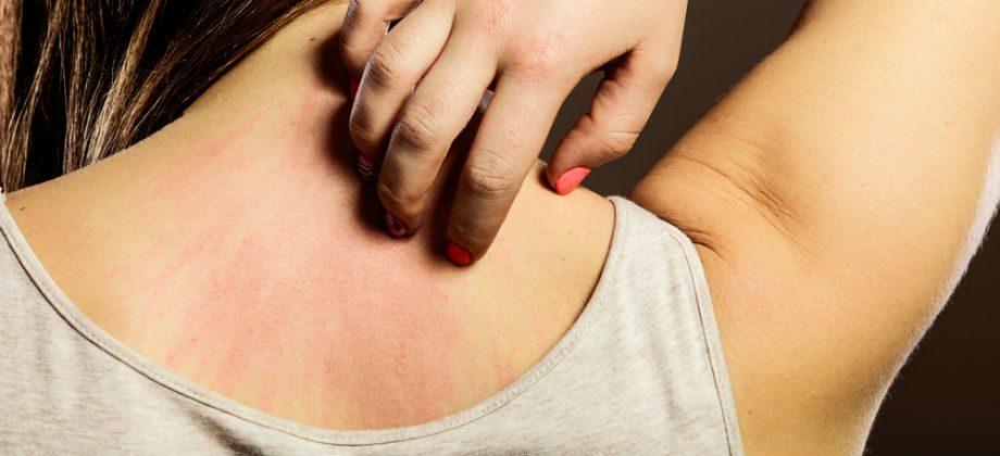 Imagem do post Qual é a diferença entre dermatite moderada e grave?