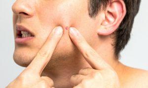 Espremer espinhas pode deixar marcas para sempre na pele?