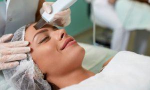 Peeling: Como funciona este procedimento estético?