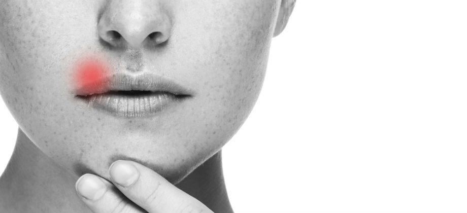 Imagem do post Herpes: Como se prevenir? Como é o tratamento? Saiba tudo sobre a doença