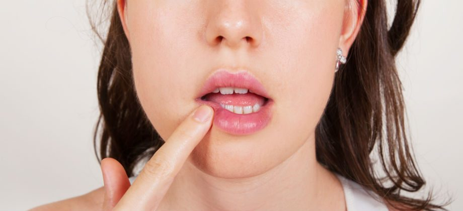 Imagem do post O herpes tem cura? Como é o tratamento da doença?