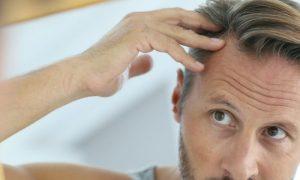 Queda de cabelo: consultar um psicólogo ajuda na autoestima?