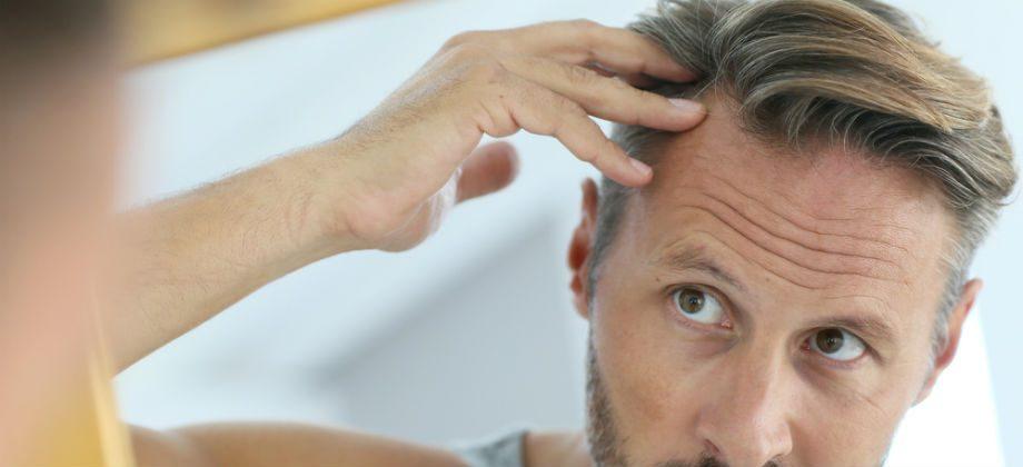 Imagem do post Queda de cabelo em excesso pode ser sinal de estresse?