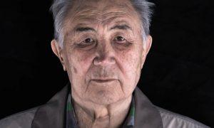 A osteoporose pode ser mais fatal para os homens?