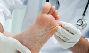 Micose: saiba tudo sobre essa infecção causada por fungos