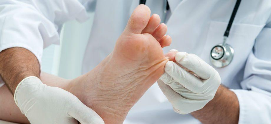 Imagem do post Micose: saiba tudo sobre essa infecção causada por fungos