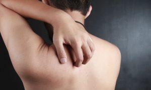 A dermatite não tratada pode se espalhar pelo corpo?