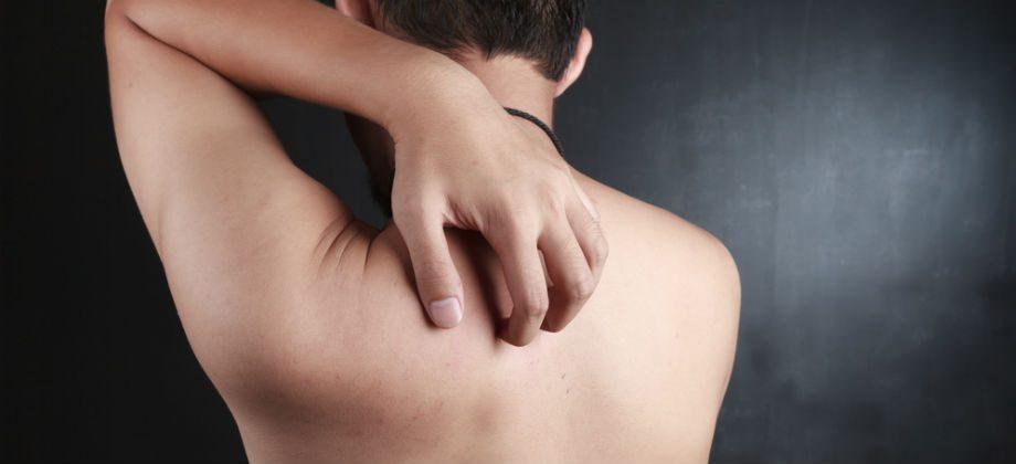 Imagem do post A dermatite não tratada pode se espalhar pelo corpo?