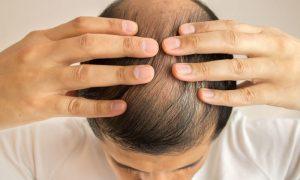 Existe algum tipo de cabelo mais propenso a cair?